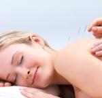 Acupuncture Perth